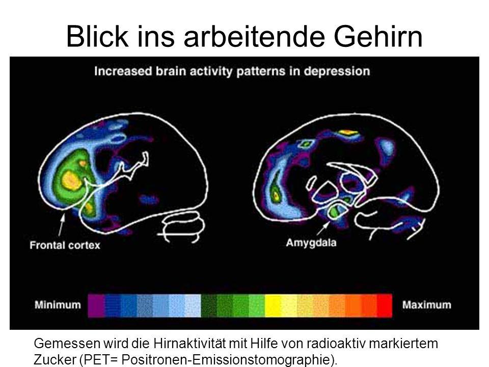 Blick ins arbeitende Gehirn