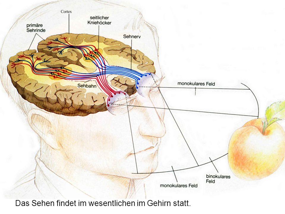 Schön Anatomie Eines Schafes Gehirn Galerie - Menschliche Anatomie ...