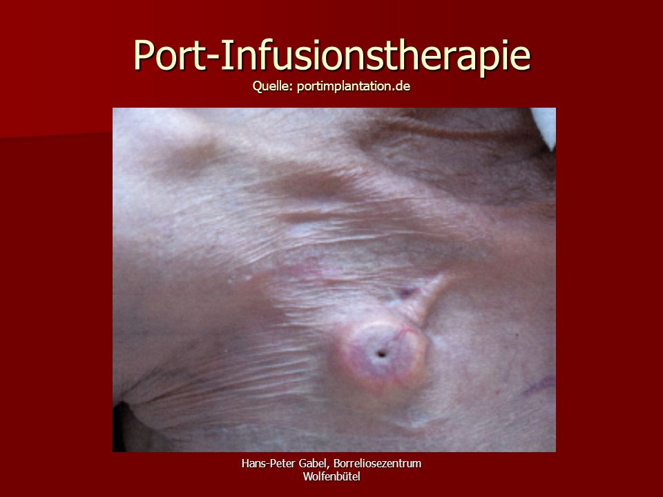 Port-Infusionstherapie Quelle: portimplantation.de