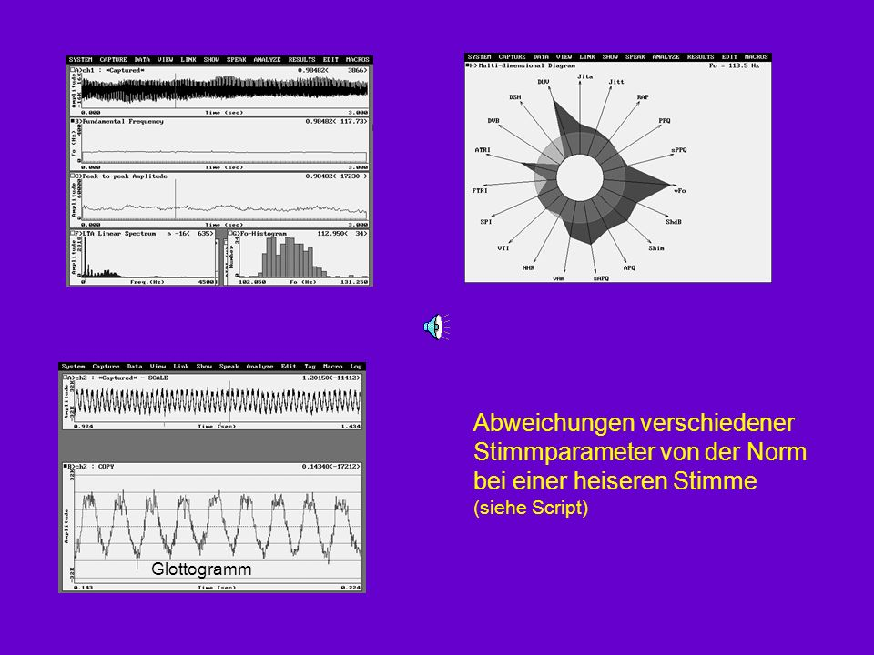 Abweichungen verschiedener Stimmparameter von der Norm