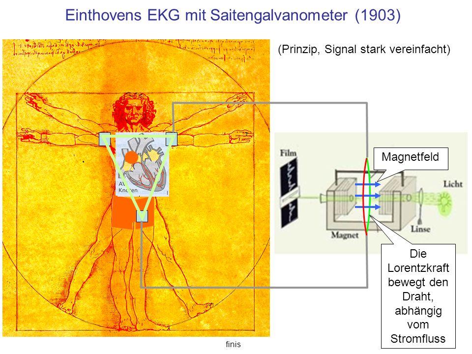 Einthovens EKG mit Saitengalvanometer (1903)