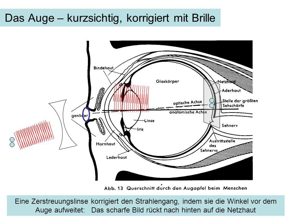 Das Auge – kurzsichtig, korrigiert mit Brille