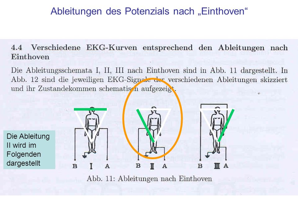 """Ableitungen des Potenzials nach """"Einthoven"""
