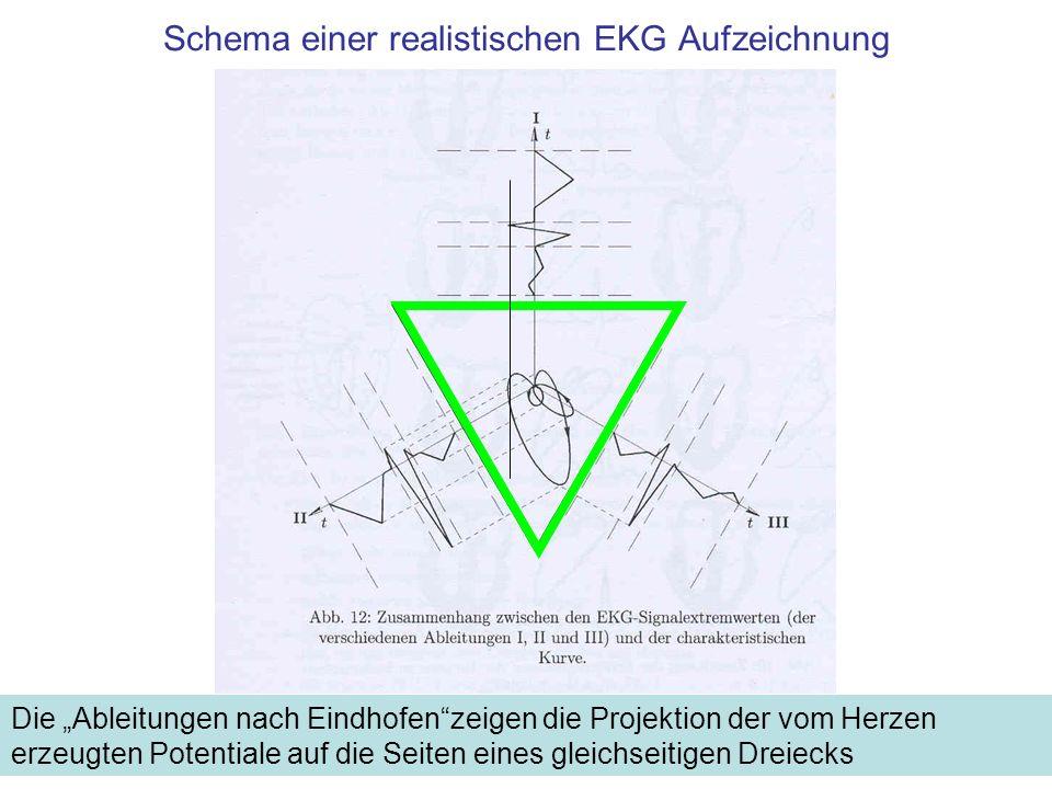 Schema einer realistischen EKG Aufzeichnung