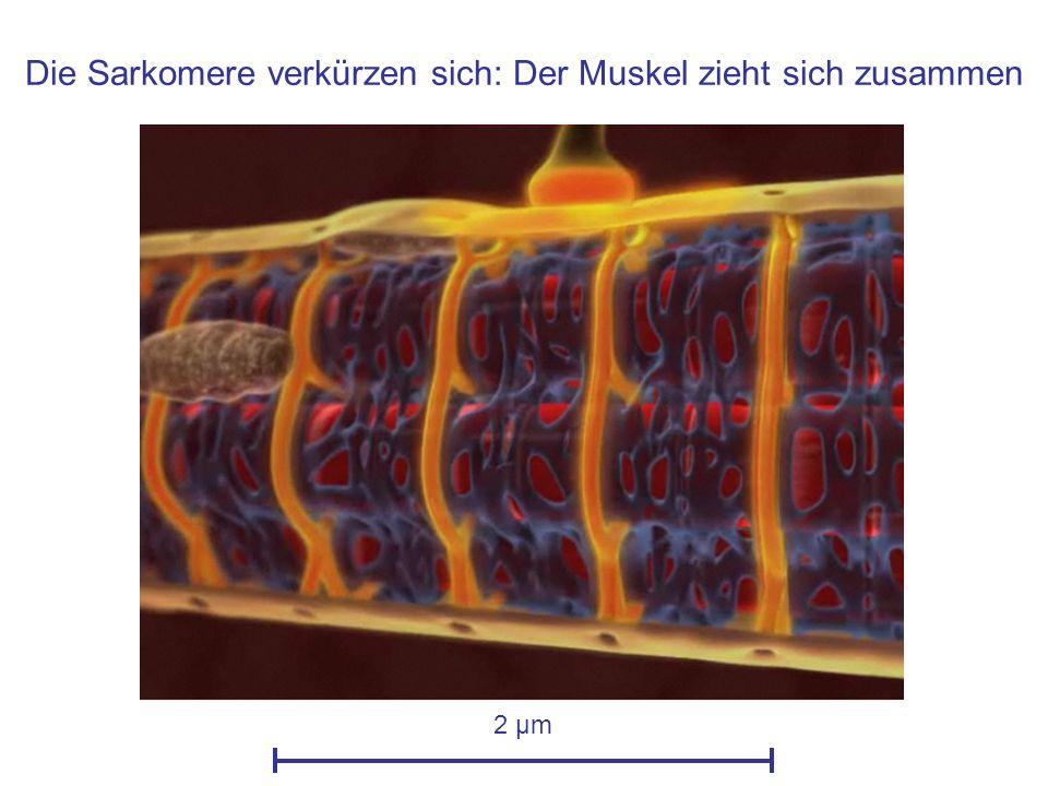 Die Sarkomere verkürzen sich: Der Muskel zieht sich zusammen