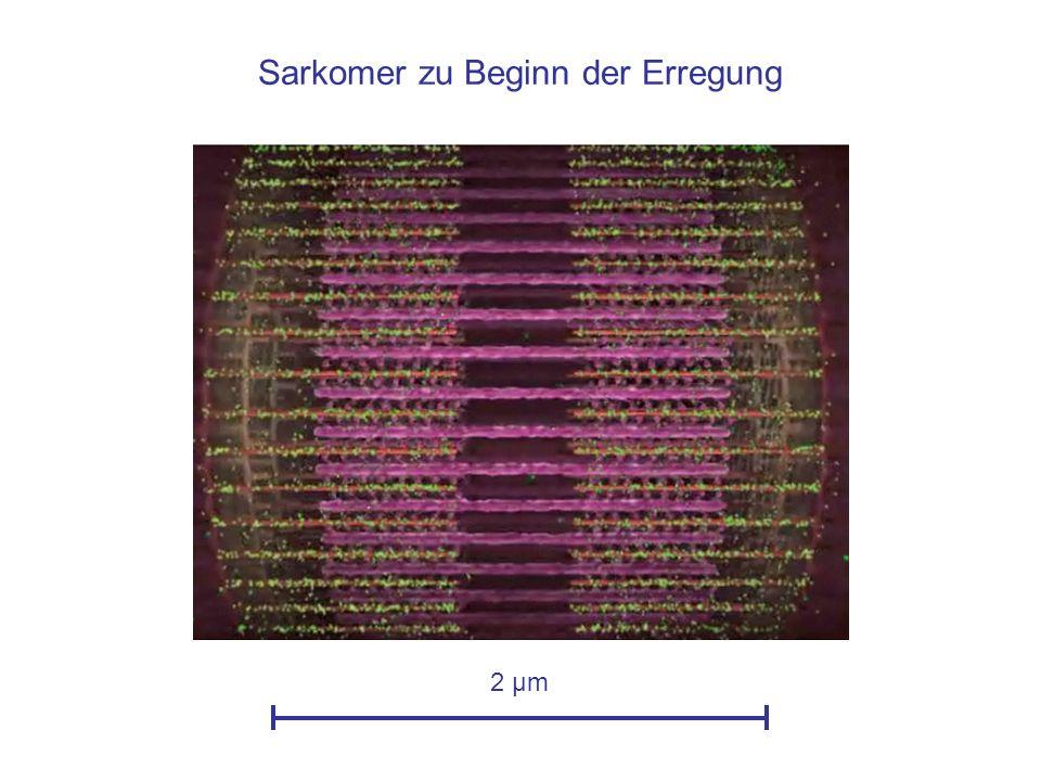 Sarkomer zu Beginn der Erregung