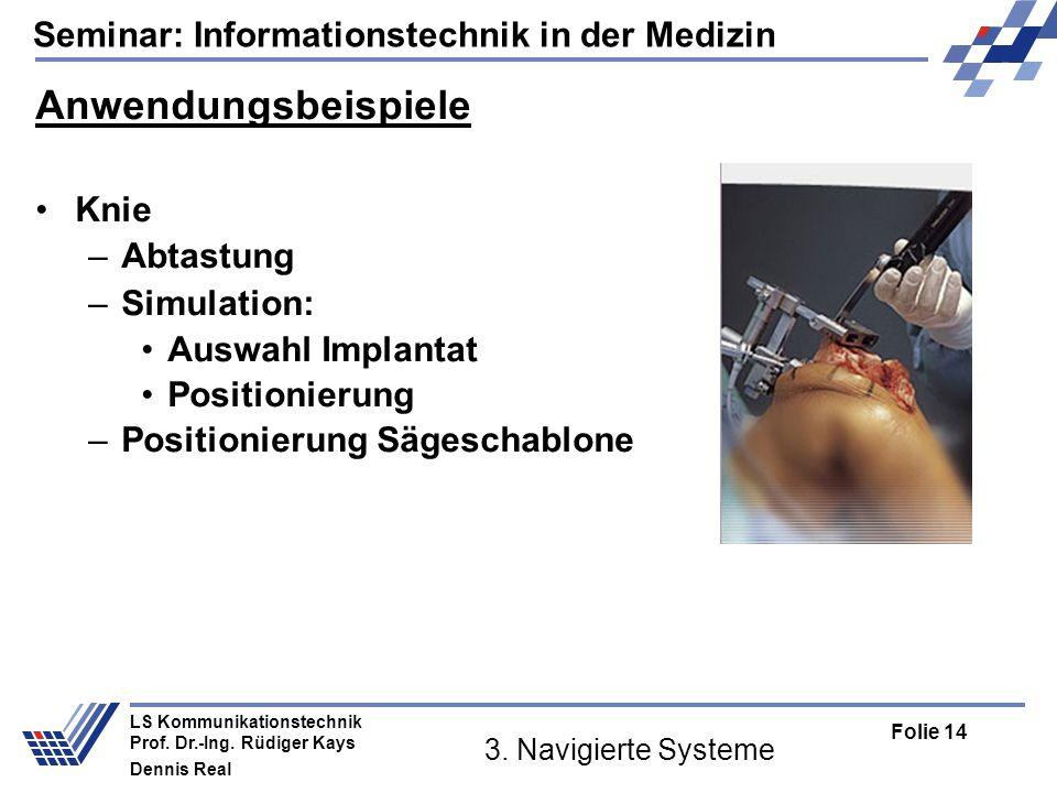 Anwendungsbeispiele Knie Abtastung Simulation: Auswahl Implantat