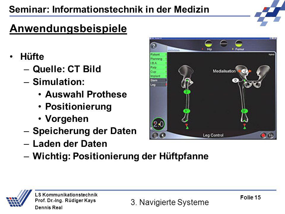 Anwendungsbeispiele Hüfte Quelle: CT Bild Simulation: Auswahl Prothese