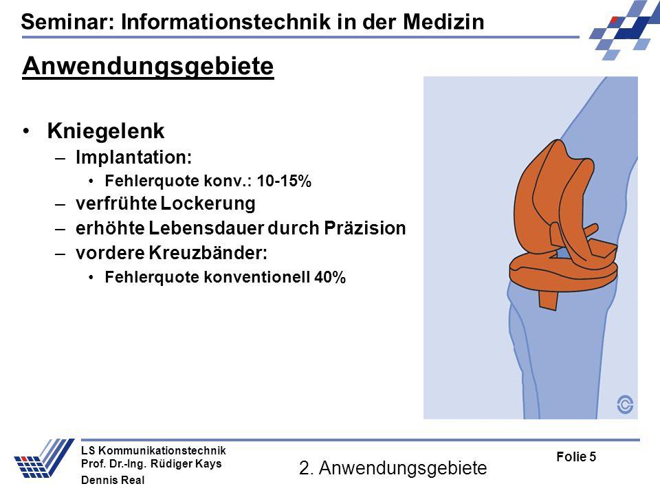 Anwendungsgebiete Kniegelenk Implantation: verfrühte Lockerung