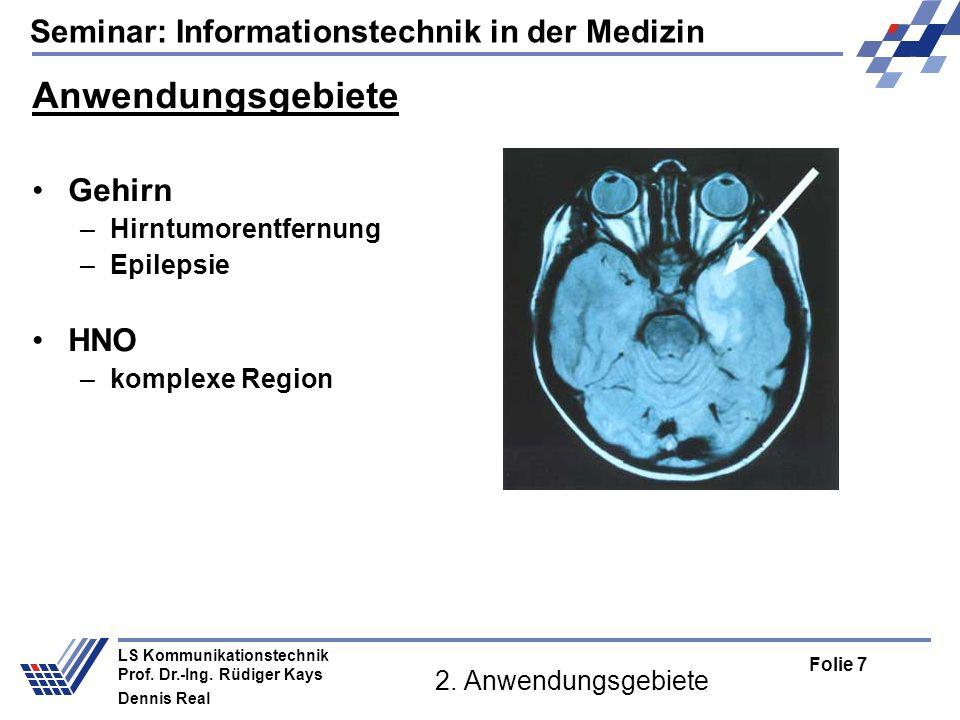 Anwendungsgebiete Gehirn HNO Hirntumorentfernung Epilepsie