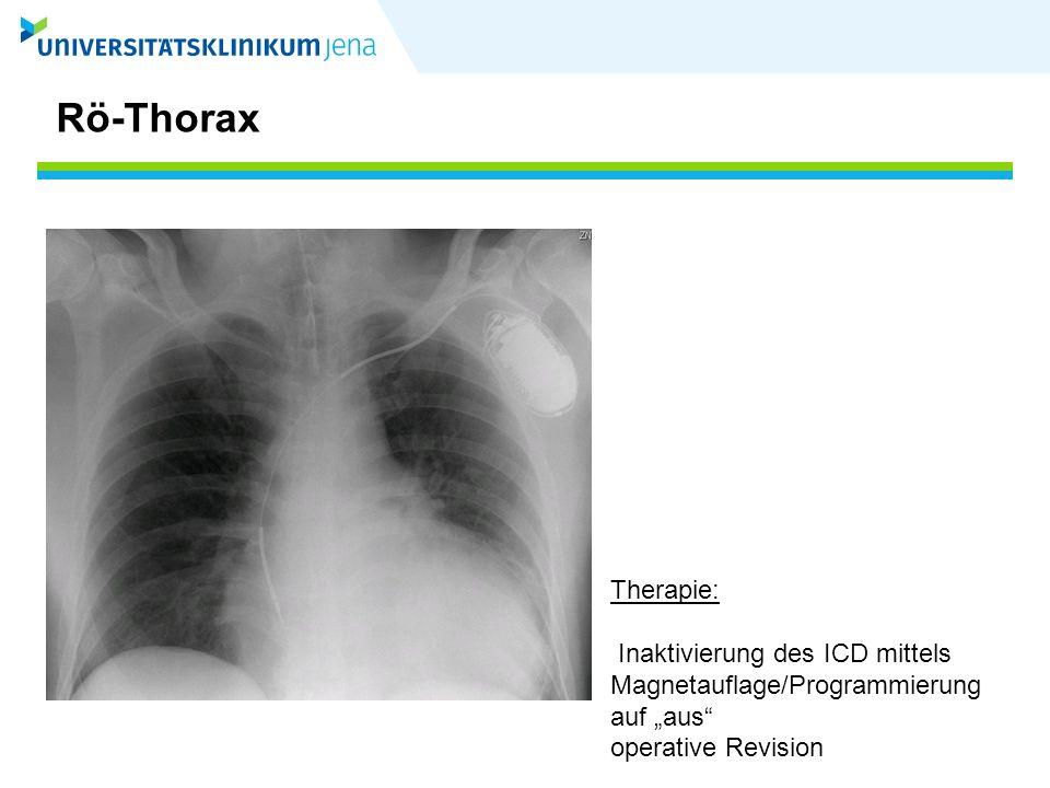 """Rö-Thorax Therapie: Inaktivierung des ICD mittels Magnetauflage/Programmierung auf """"aus operative Revision."""