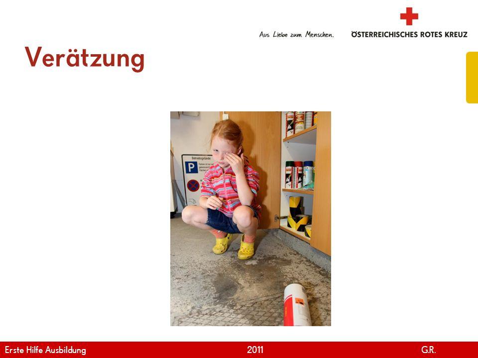Verätzung Erste Hilfe Ausbildung 2011 G.R.
