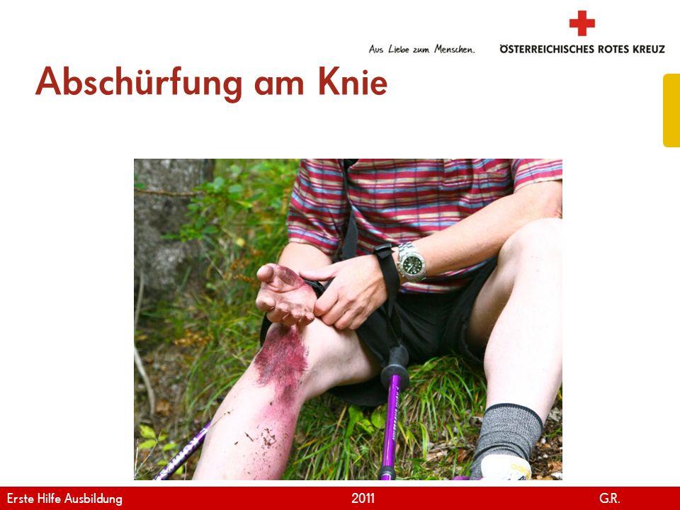 Abschürfung am Knie Erste Hilfe Ausbildung 2011 G.R.