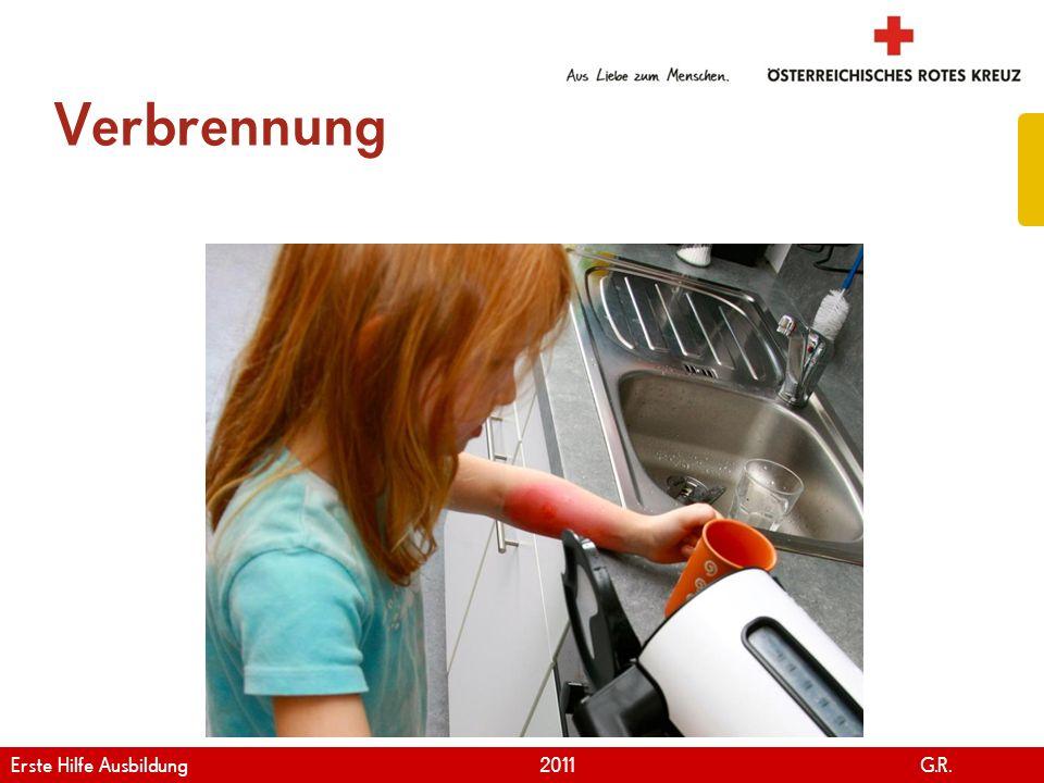 Verbrennung Erste Hilfe Ausbildung 2011 G.R.