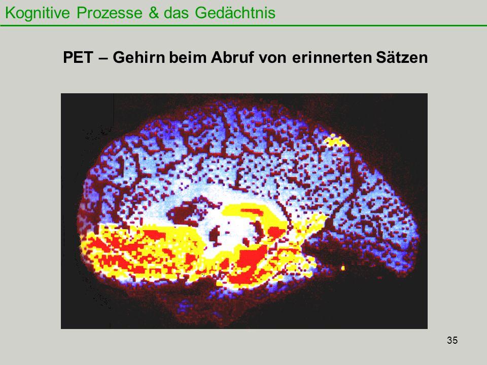 PET – Gehirn beim Abruf von erinnerten Sätzen