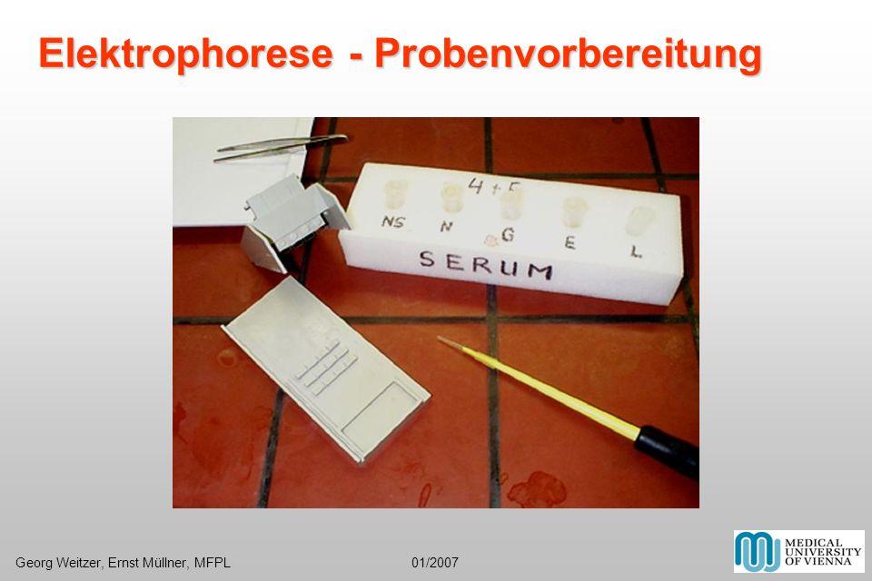 Elektrophorese - Probenvorbereitung