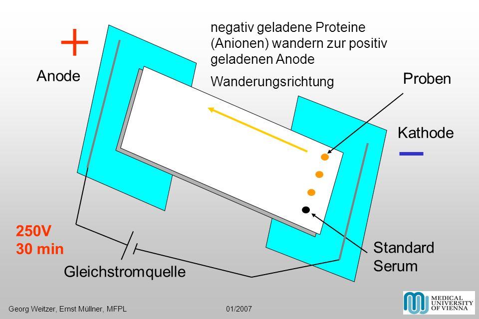 + Anode Proben Kathode 250V 30 min Standard Serum Gleichstromquelle