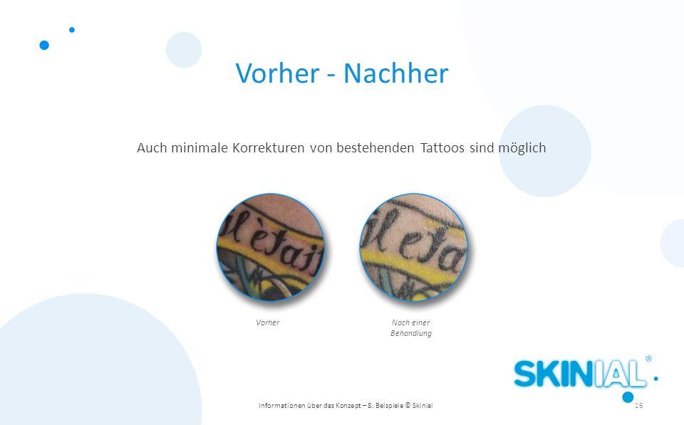 Auch minimale Korrekturen von bestehenden Tattoos sind möglich