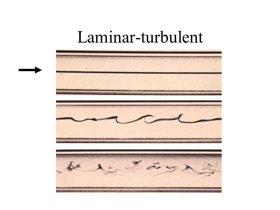 Laminar-turbulent