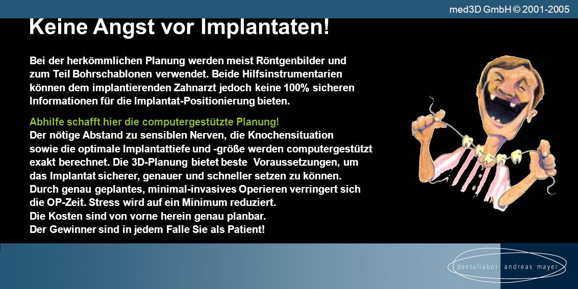 Keine Angst vor Implantaten!