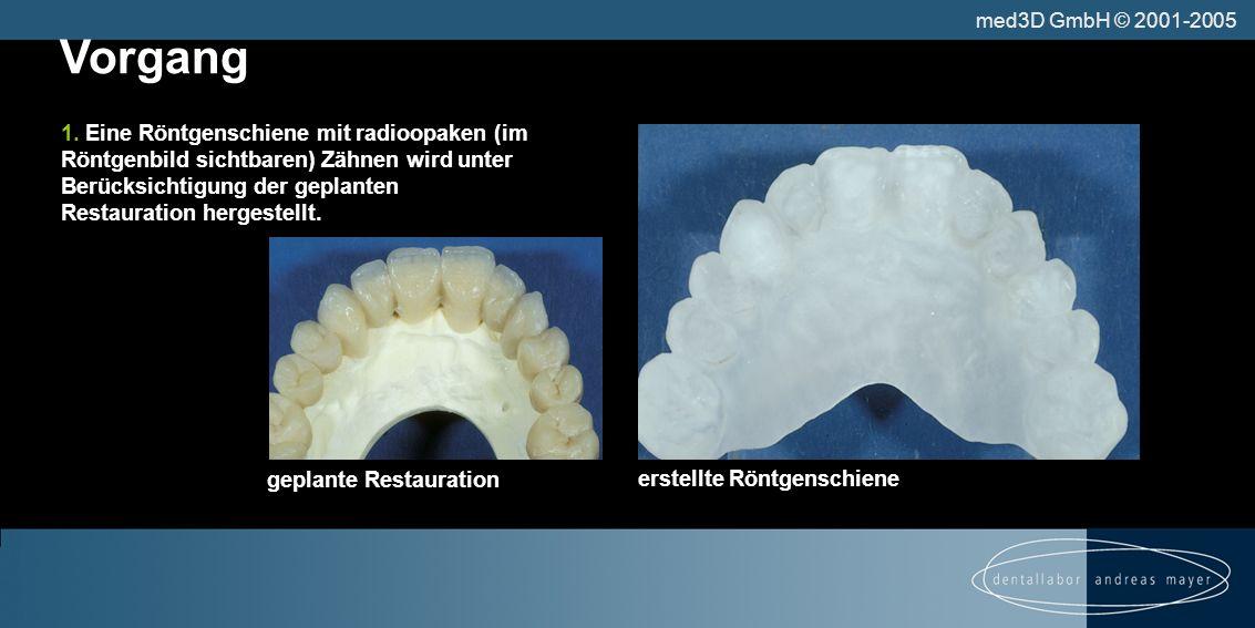 erstellte Röntgenschiene