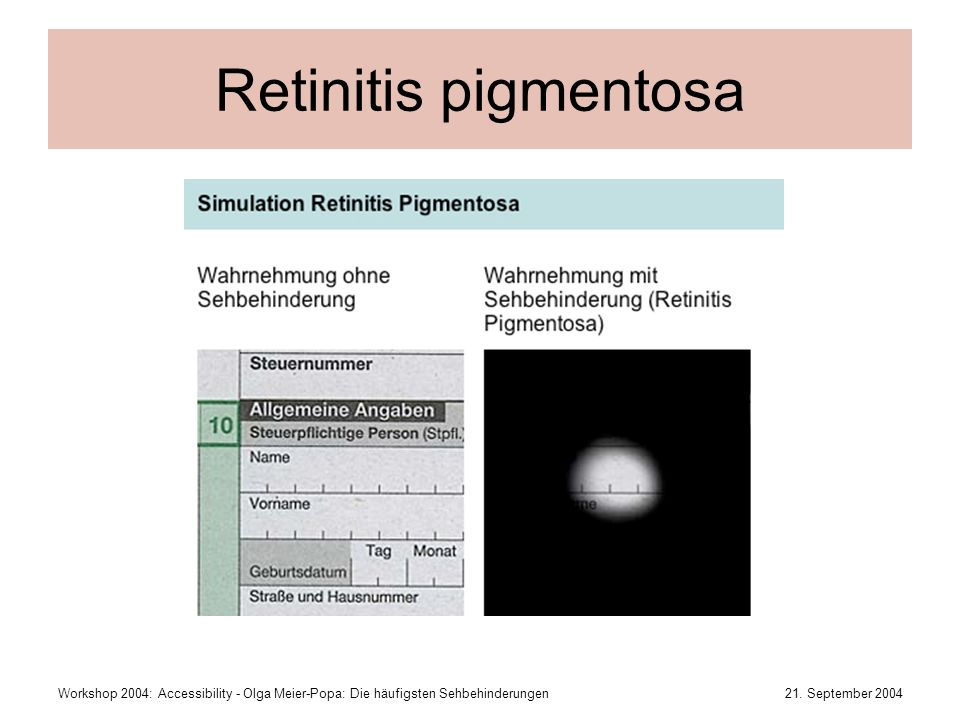 Retinitis pigmentosaWorkshop 2004: Accessibility - Olga Meier-Popa: Die häufigsten Sehbehinderungen.