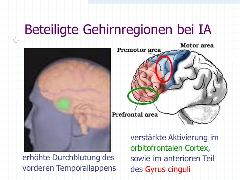 Beteiligte Gehirnregionen bei IA