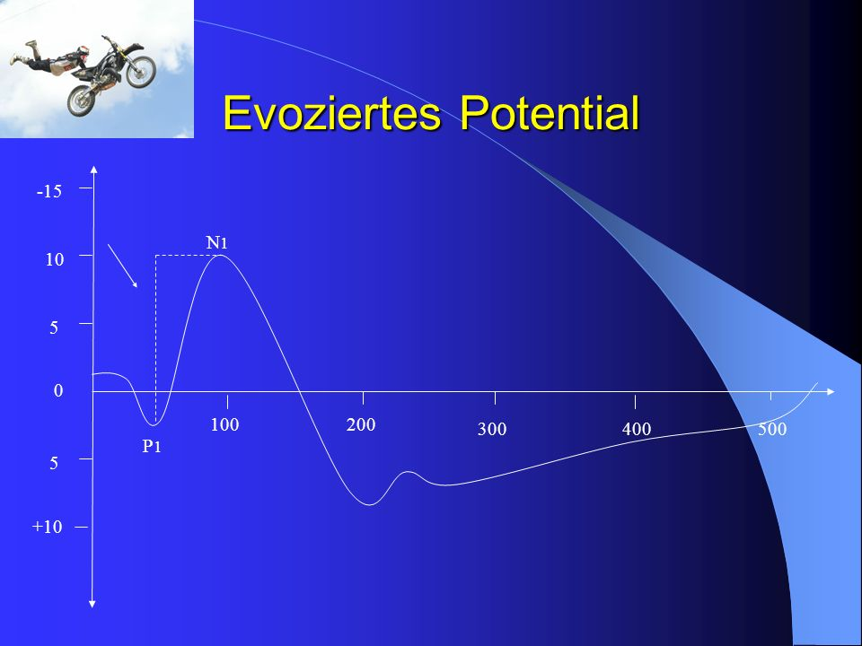 Evoziertes Potential -15 N1 10 5 100 200 300 400 500 P1 5 +10