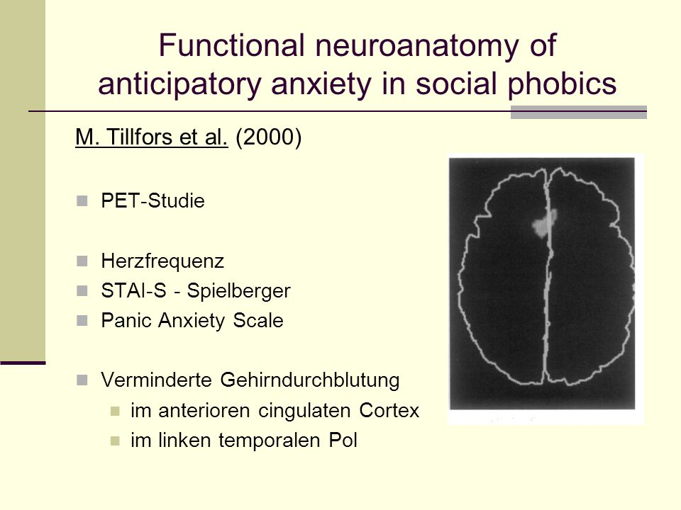 Functional neuroanatomy of anticipatory anxiety in social phobics