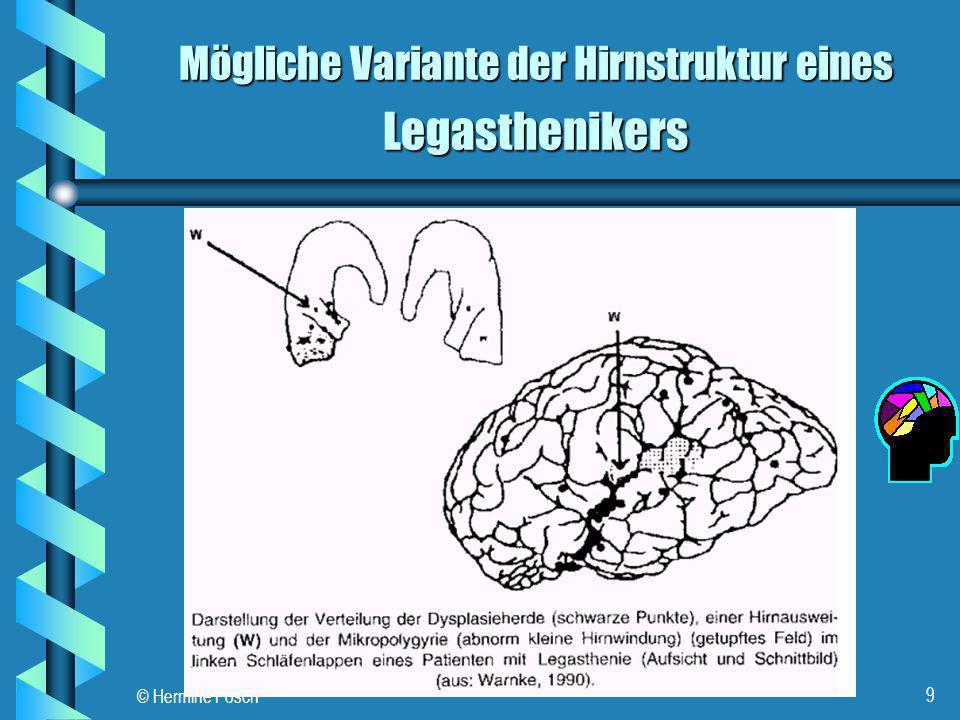 Mögliche Variante der Hirnstruktur eines