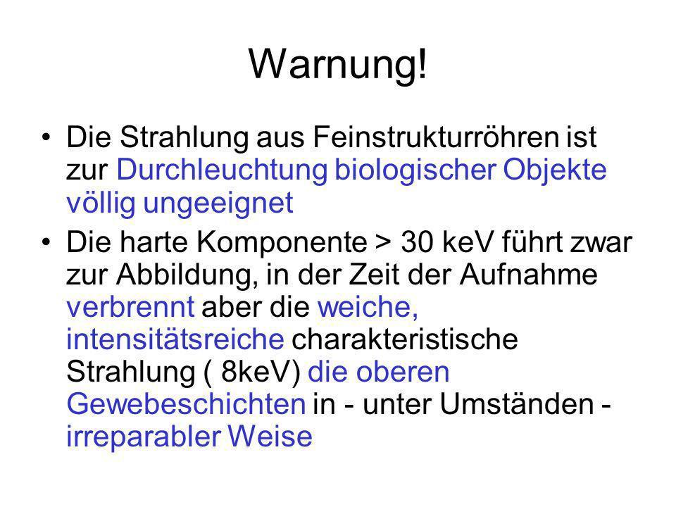 Warnung! Die Strahlung aus Feinstrukturröhren ist zur Durchleuchtung biologischer Objekte völlig ungeeignet.