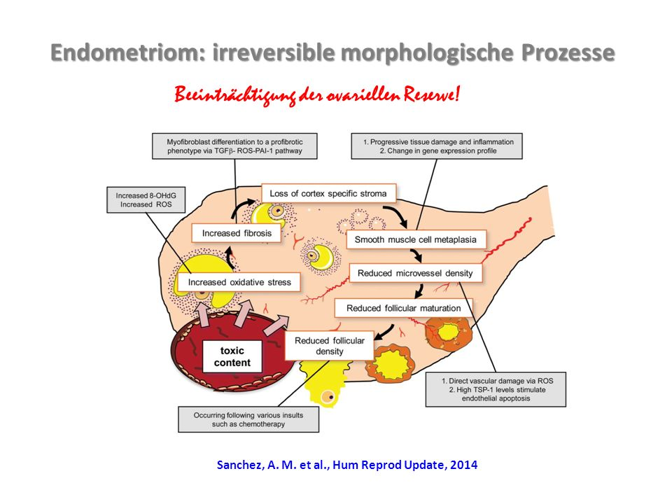 Endometriom: irreversible morphologische Prozesse