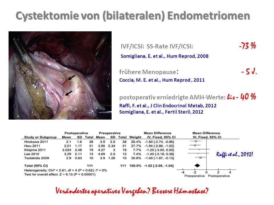 Cystektomie von (bilateralen) Endometriomen
