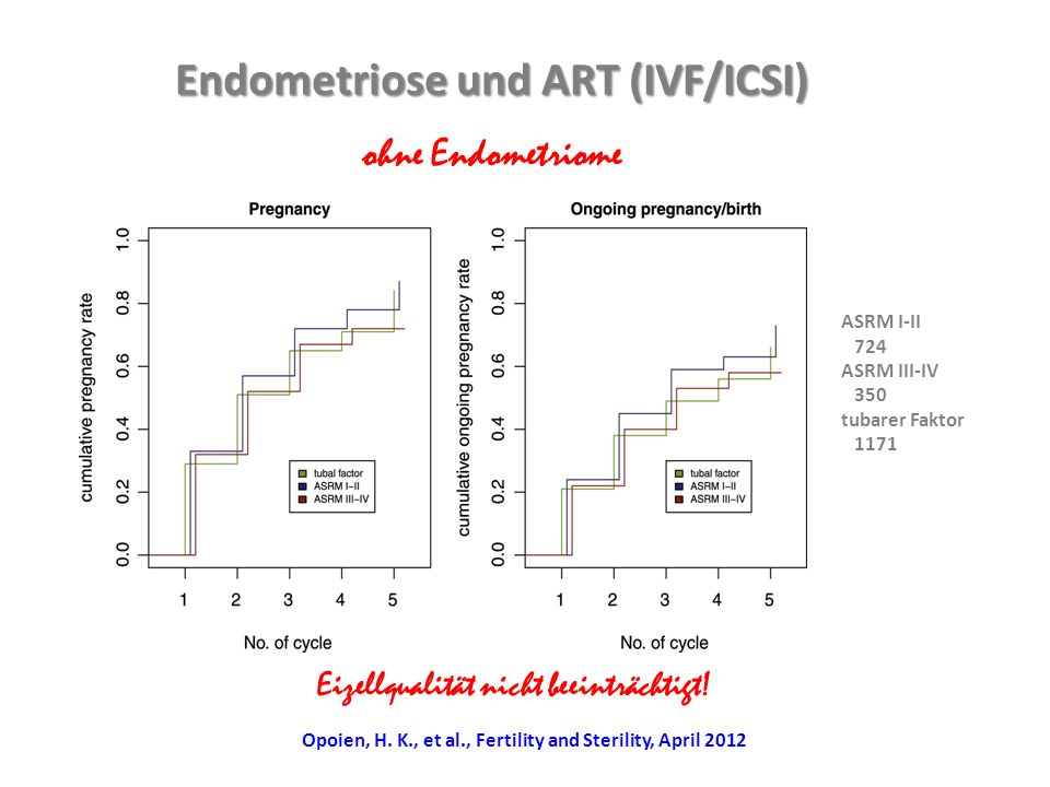 Endometriose und ART (IVF/ICSI)