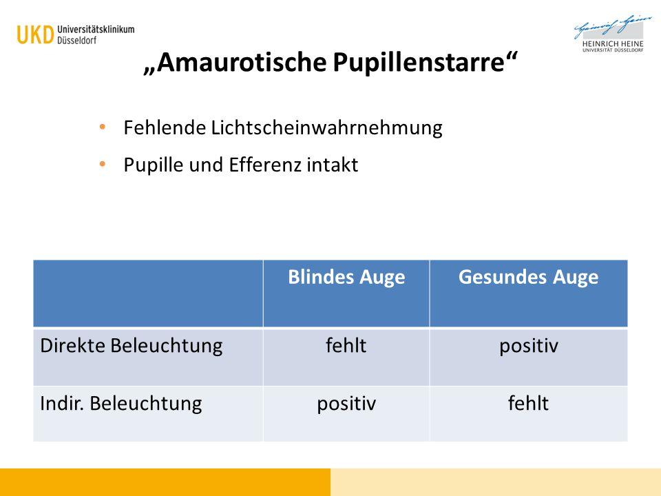 """""""Amaurotische Pupillenstarre"""