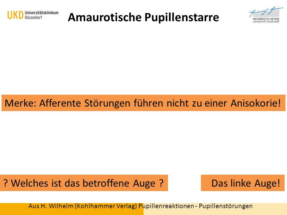 Berühmt Menschliches Auge Anatomie Quiz Bilder - Menschliche ...