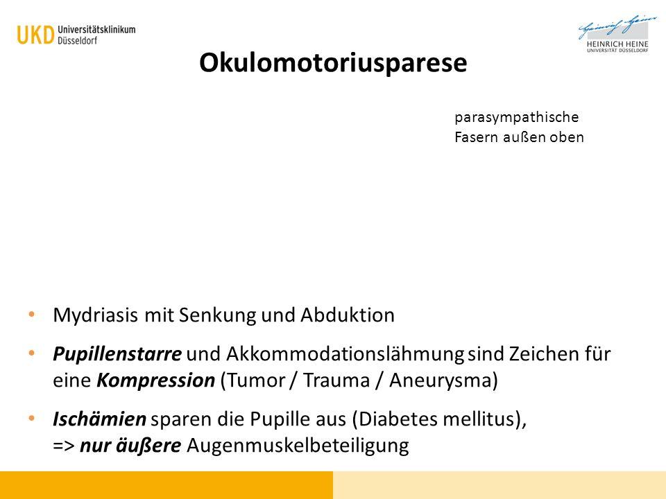 Okulomotoriusparese Mydriasis mit Senkung und Abduktion