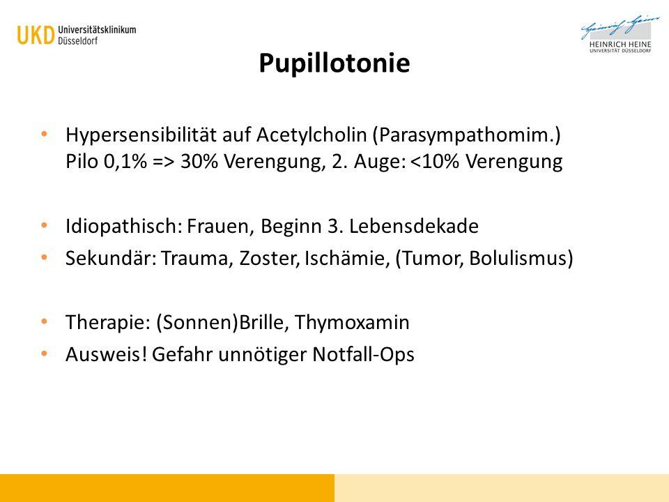 Pupillotonie Hypersensibilität auf Acetylcholin (Parasympathomim.) Pilo 0,1% => 30% Verengung, 2. Auge: <10% Verengung.