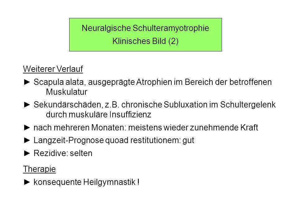 Neuralgische Schulteramyotrophie