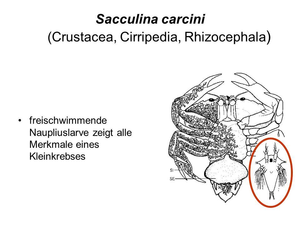 Sacculina carcini (Crustacea, Cirripedia, Rhizocephala)