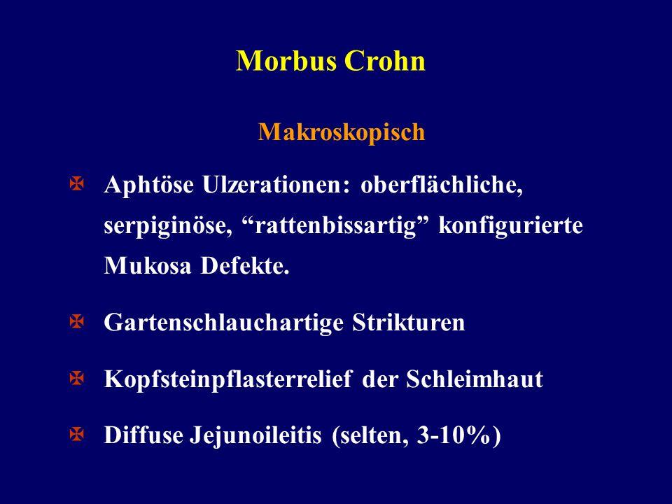 Morbus Crohn Makroskopisch