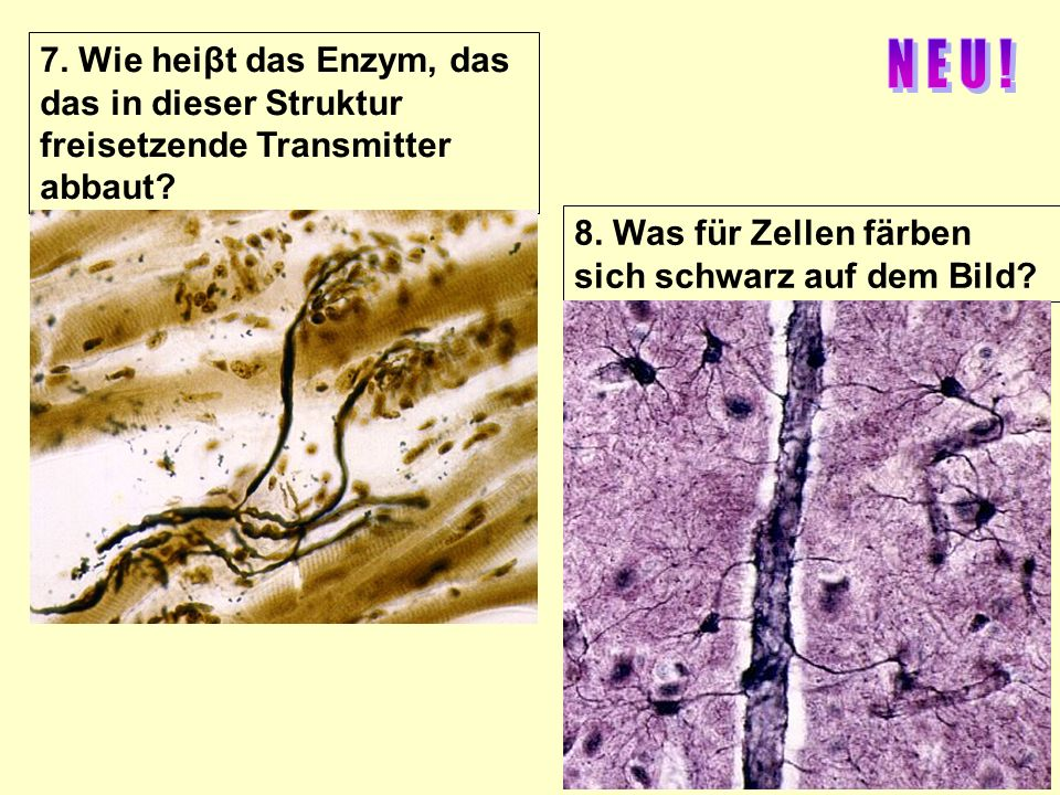 7. Wie heiβt das Enzym, das das in dieser Struktur freisetzende Transmitter abbaut