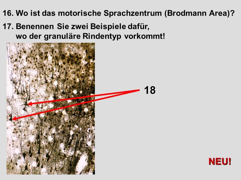 18 NEU! 16. Wo ist das motorische Sprachzentrum (Brodmann Area)