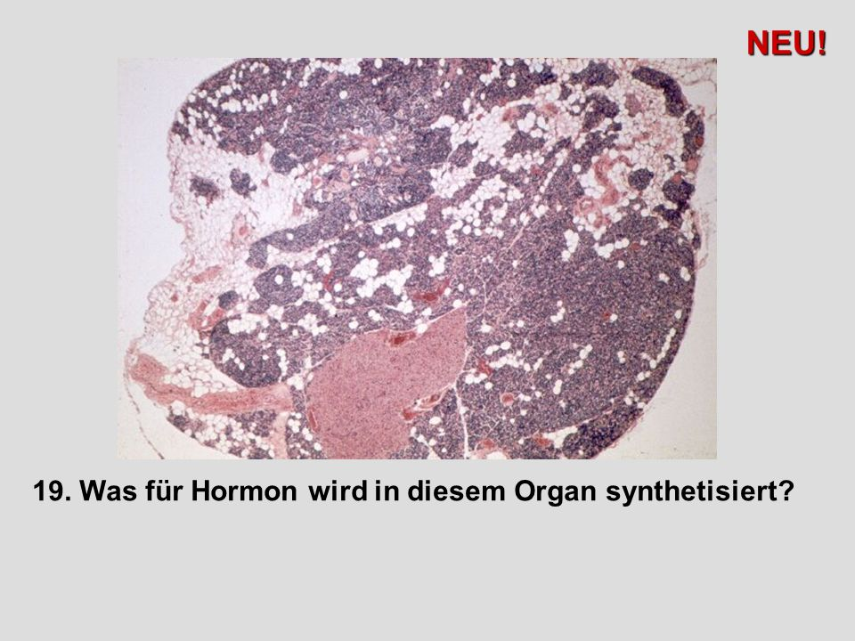 NEU! 19. Was für Hormon wird in diesem Organ synthetisiert