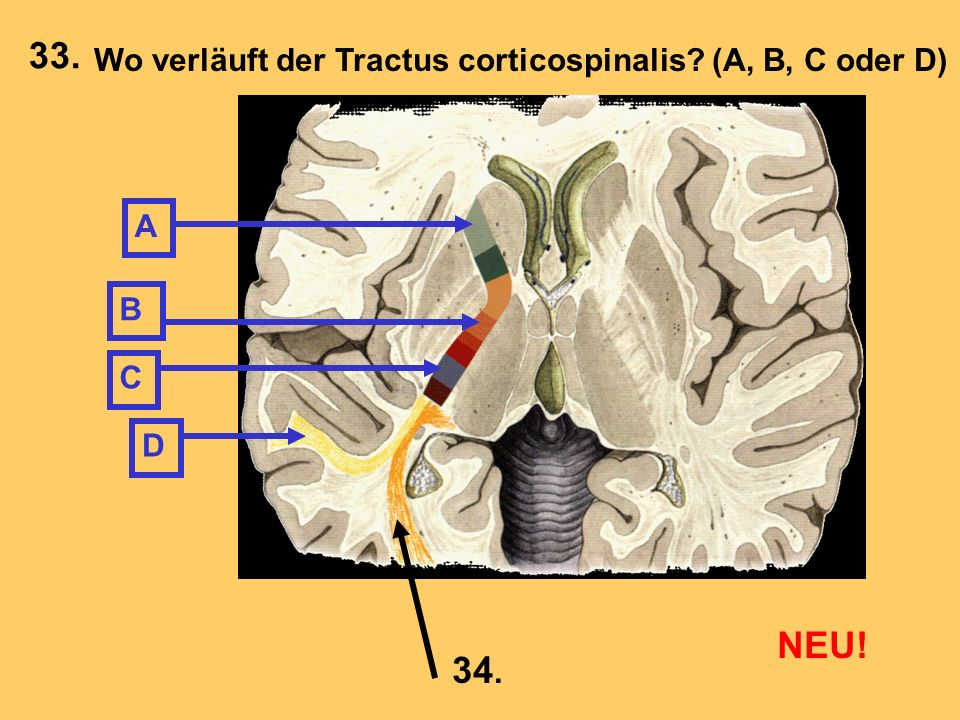 33. NEU! 34. Wo verläuft der Tractus corticospinalis (A, B, C oder D)