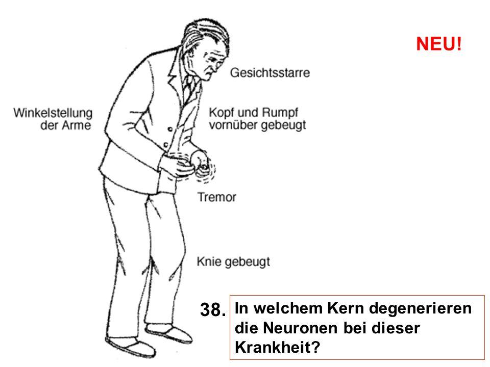 NEU! 38. In welchem Kern degenerieren die Neuronen bei dieser Krankheit