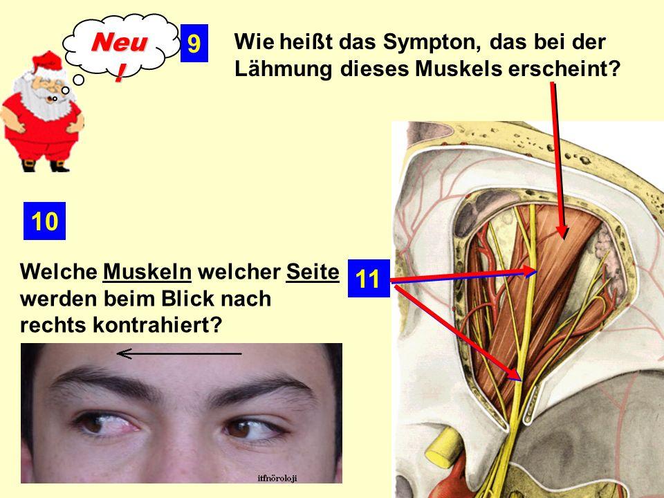 Neu! 9. Wie heißt das Sympton, das bei der Lähmung dieses Muskels erscheint 10.