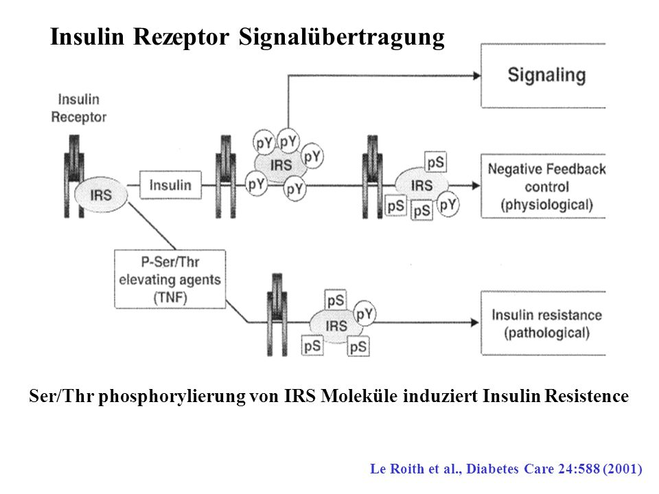 Ser/Thr phosphorylierung von IRS Moleküle induziert Insulin Resistence