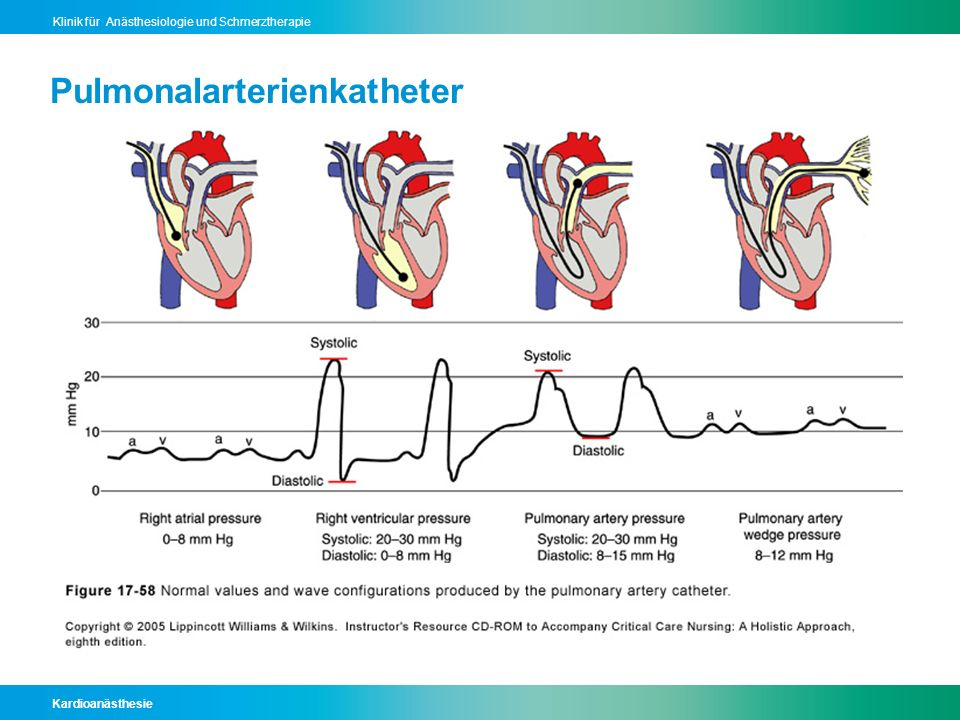 Pulmonalarterienkatheter