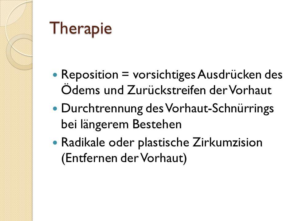 TherapieReposition = vorsichtiges Ausdrücken des Ödems und Zurückstreifen der Vorhaut. Durchtrennung des Vorhaut-Schnürrings bei längerem Bestehen.